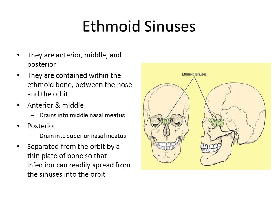 Ethmoid Sinuses They are anterior, middle, and posterior