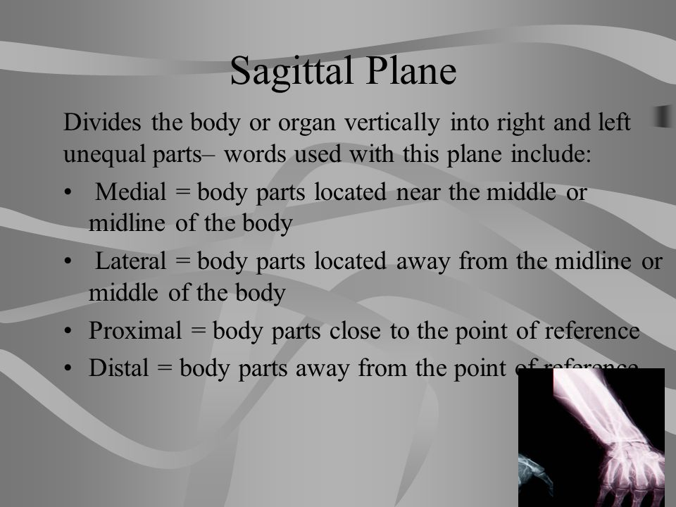Sagittal Plane Divides the body or organ vertically into right and left unequal parts– words used with this plane include: