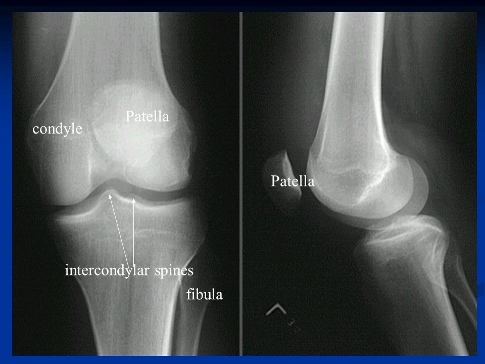 Patella condyle Patella intercondylar spines fibula 39 39