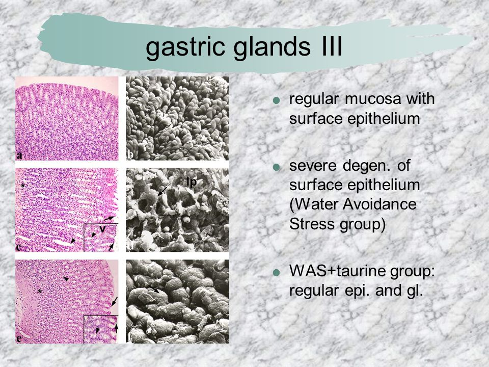 gastric glands III regular mucosa with surface epithelium