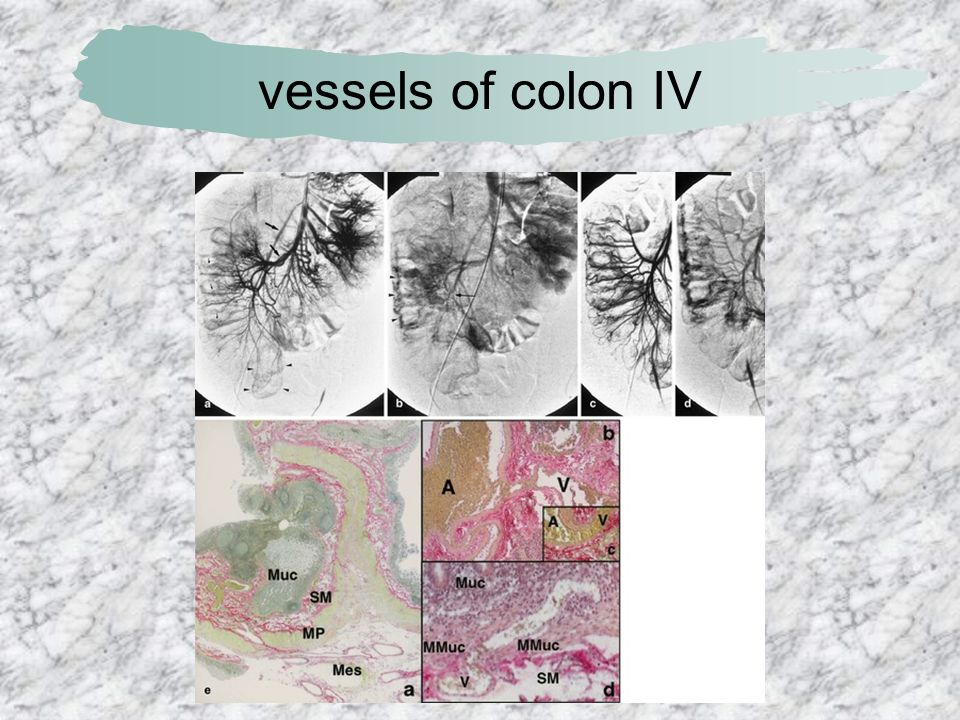 vessels of colon IV