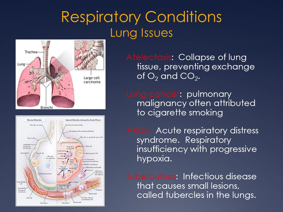 Respiratory Conditions Lung Issues