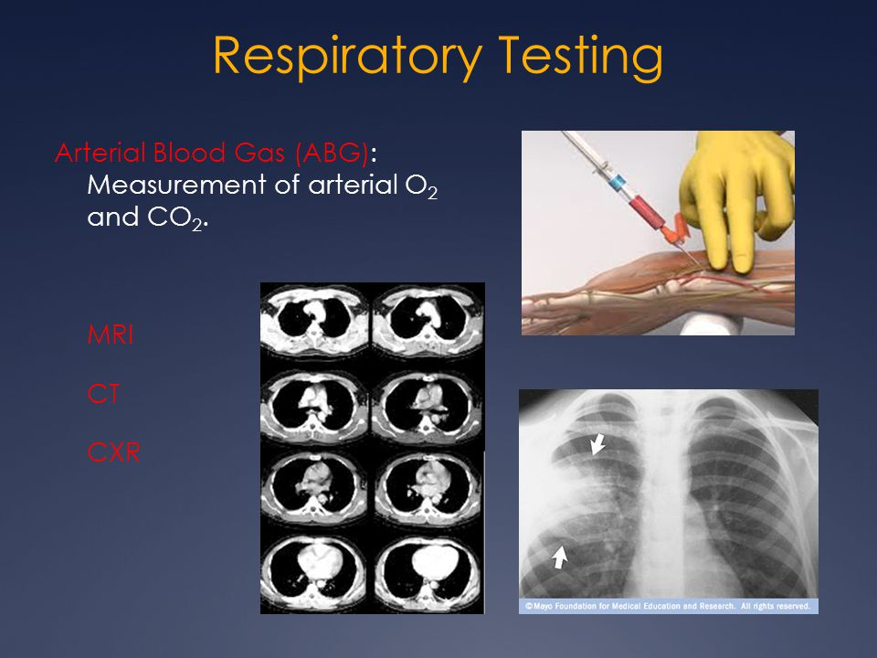 Respiratory Testing Arterial Blood Gas (ABG): Measurement of arterial O2 and CO2. MRI CT CXR
