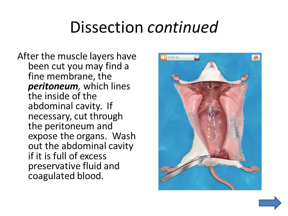 Dissection continued