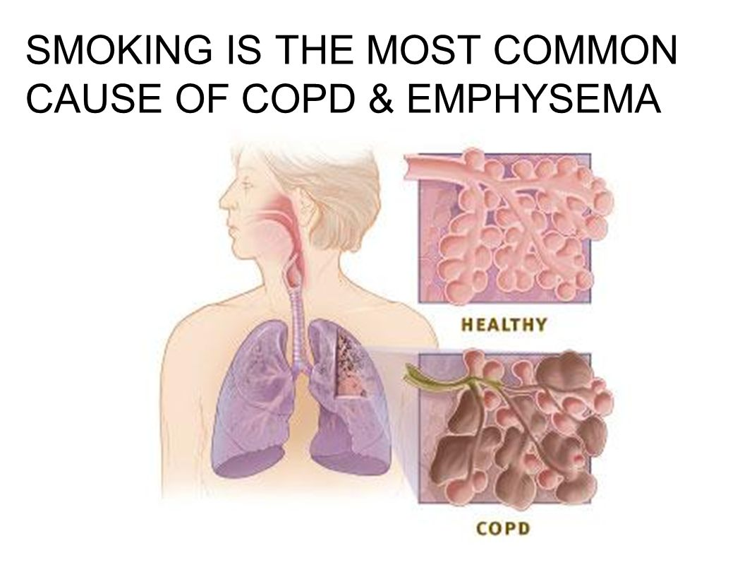 SMOKING IS THE MOST COMMON CAUSE OF COPD & EMPHYSEMA