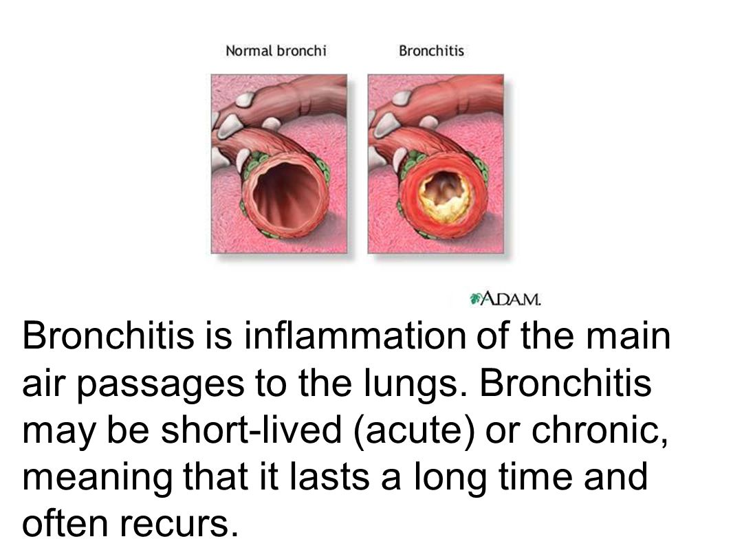 Bronchitis is inflammation of the main air passages to the lungs