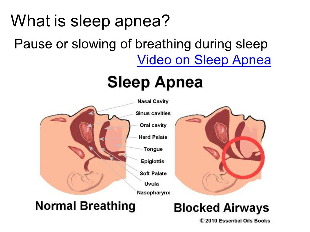 What is sleep apnea Pause or slowing of breathing during sleep