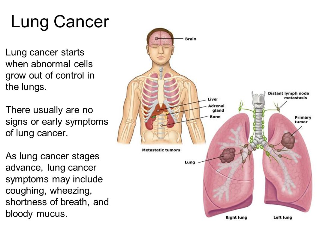 Lung Cancer Lung cancer starts when abnormal cells grow out of control in the lungs. There usually are no signs or early symptoms of lung cancer.