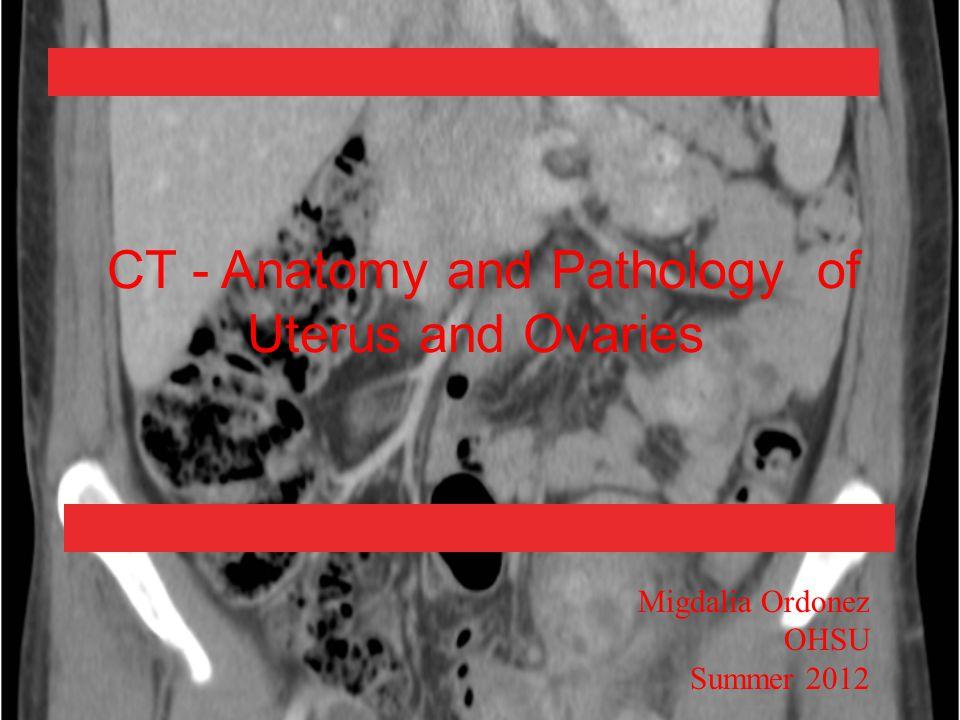 CT - Anatomy and Pathology of Uterus and Ovaries