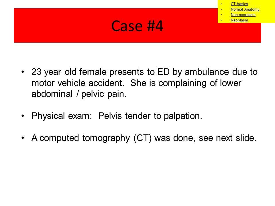 CT basics Normal Anatomy. Non-neoplasm. Neoplasm. Case #4.