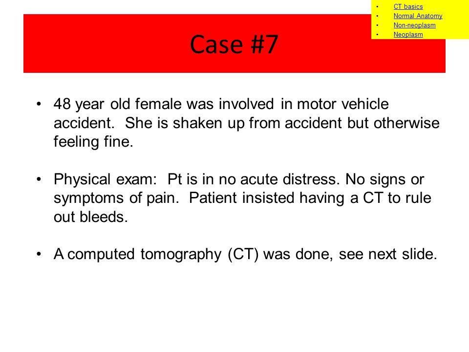 CT basics Normal Anatomy. Non-neoplasm. Neoplasm. Case #7.