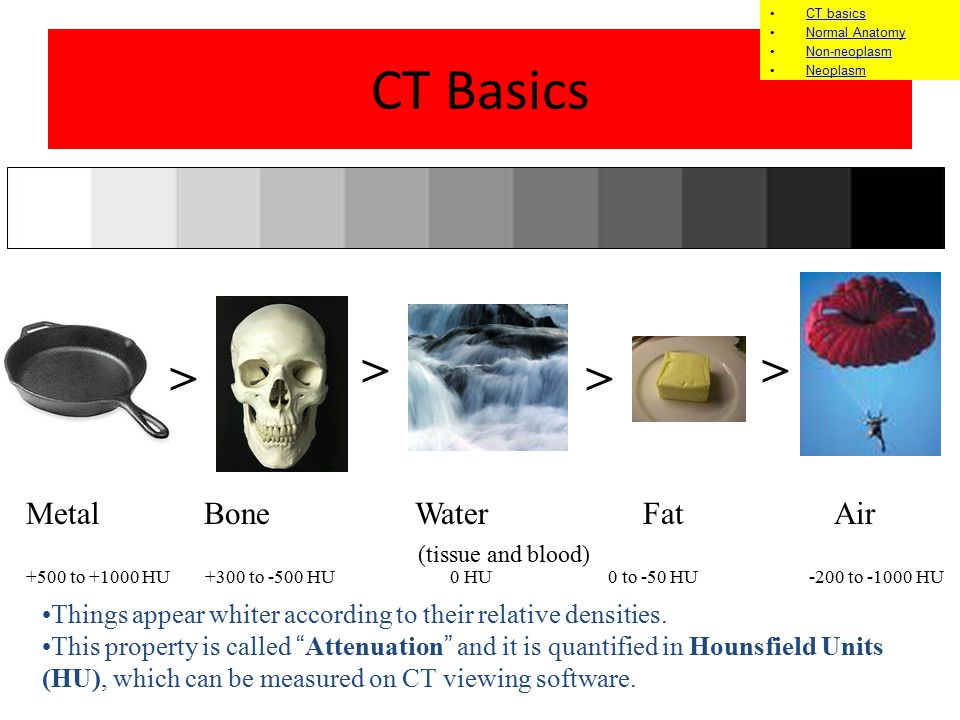 CT Basics > > > >