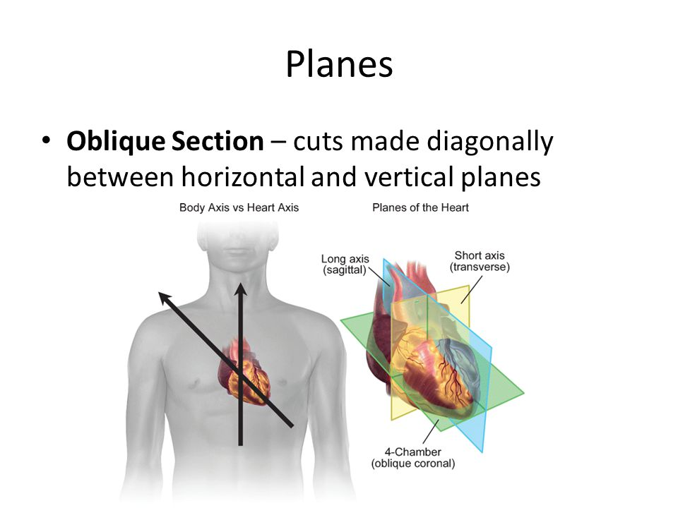 Planes Oblique Section – cuts made diagonally between horizontal and vertical planes