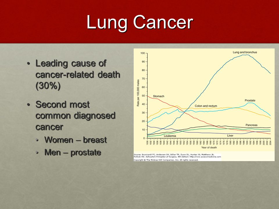 Lung Cancer Leading cause of cancer-related death (30%)