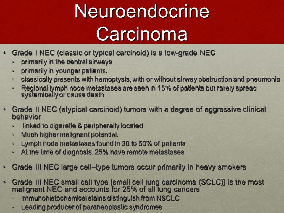 Neuroendocrine Carcinoma