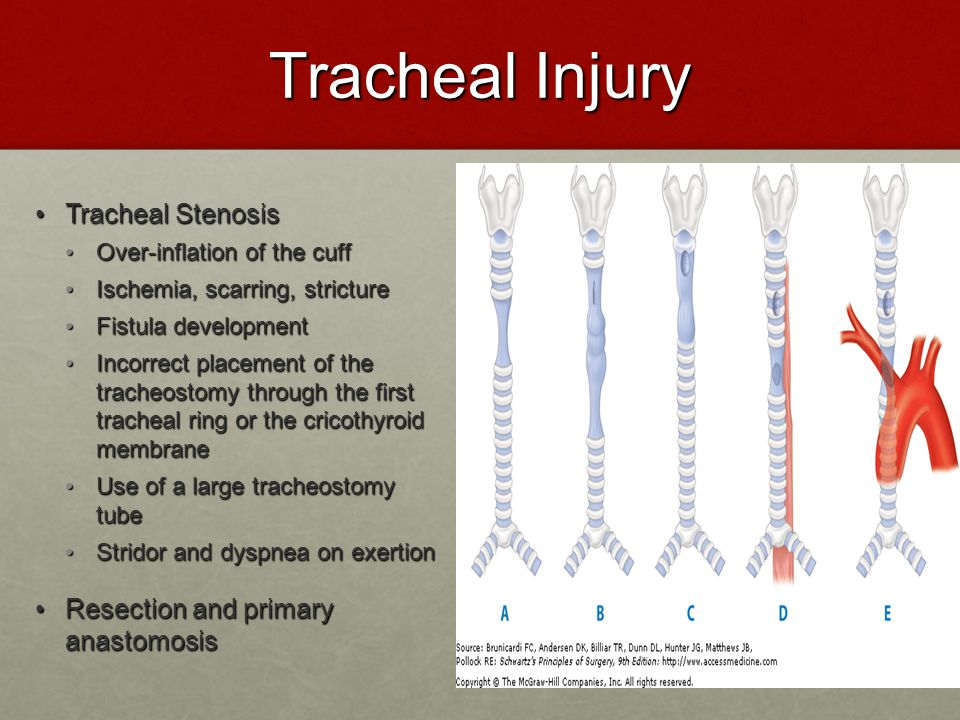 Tracheal Injury Tracheal Stenosis Resection and primary anastomosis