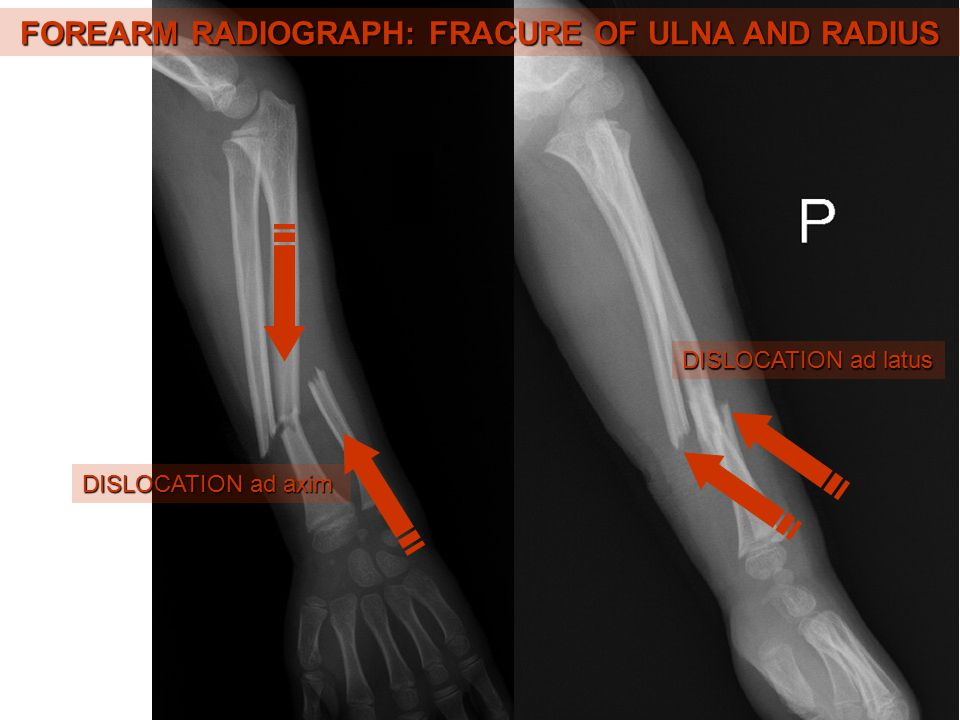 FOREARM RADIOGRAPH: FRACURE OF ULNA AND RADIUS