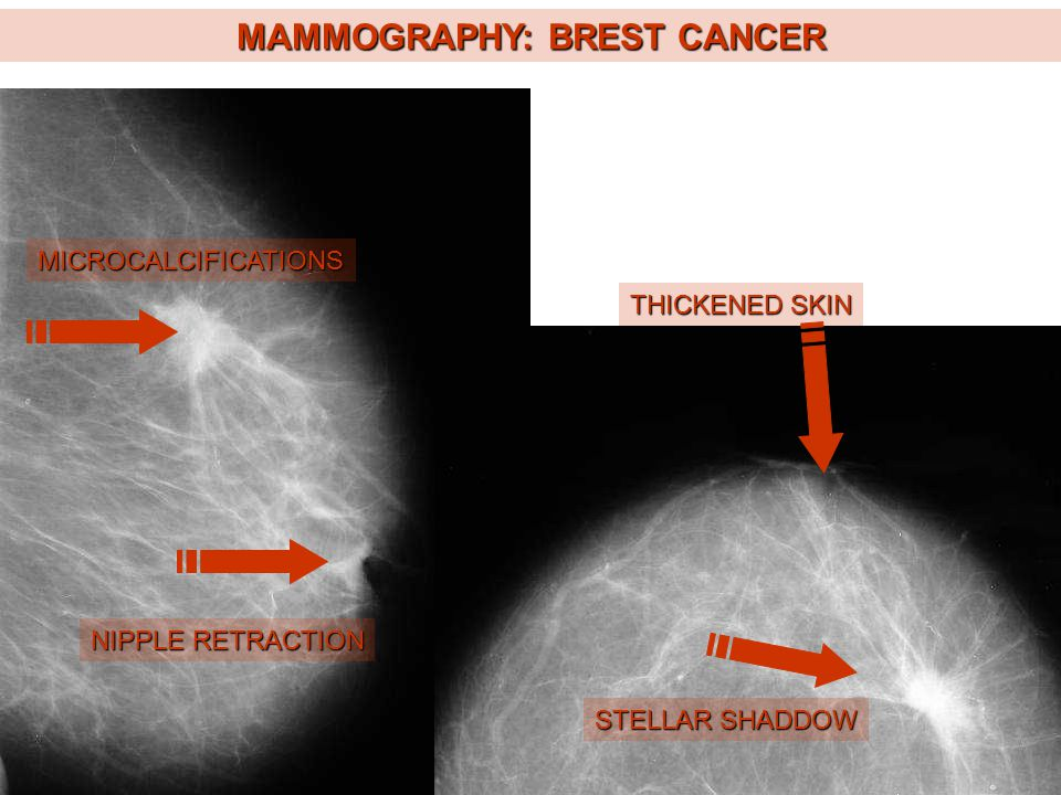 MAMMOGRAPHY: BREST CANCER
