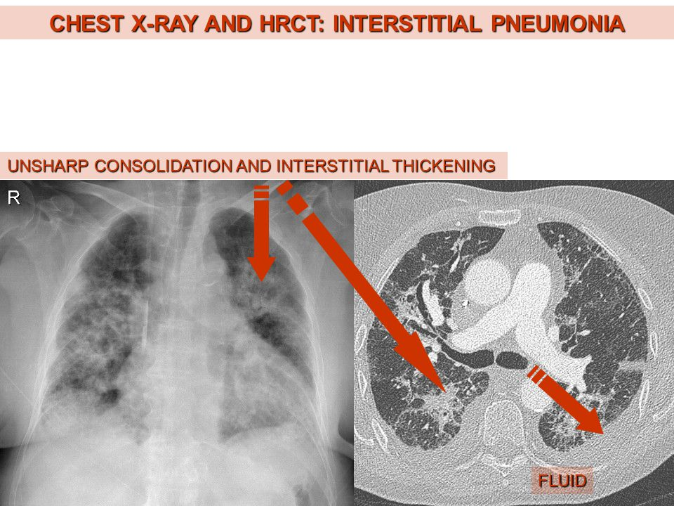 CHEST X-RAY AND HRCT: INTERSTITIAL PNEUMONIA