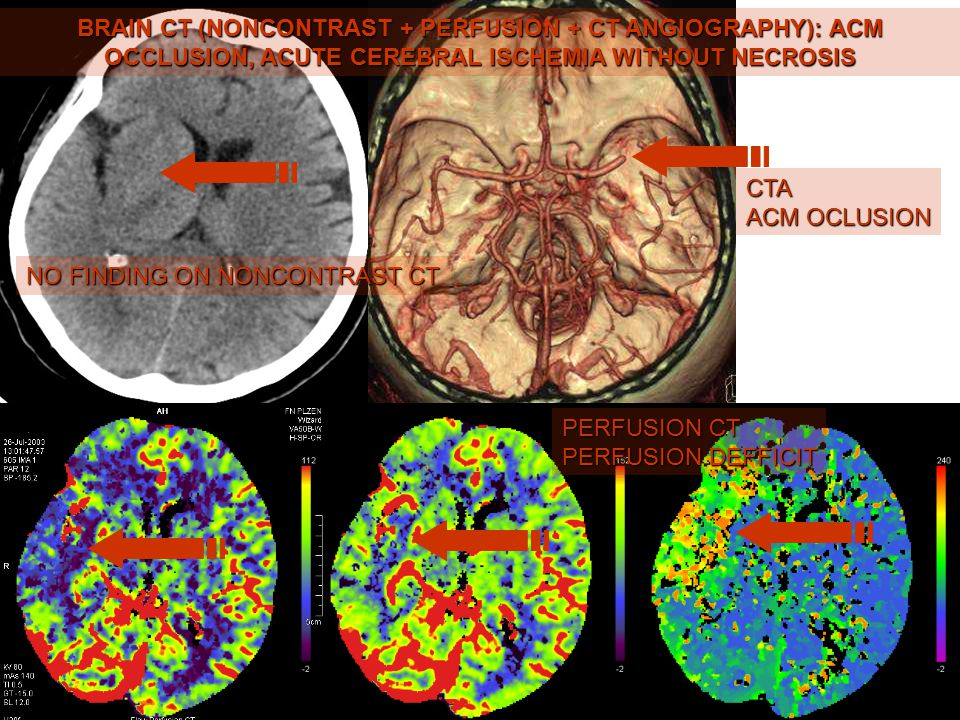 BRAIN CT (NONCONTRAST + PERFUSION + CT ANGIOGRAPHY): ACM OCCLUSION, ACUTE CEREBRAL ISCHEMIA WITHOUT NECROSIS