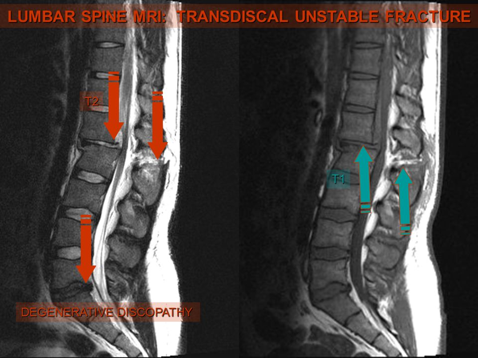 LUMBAR SPINE MRI: TRANSDISCAL UNSTABLE FRACTURE