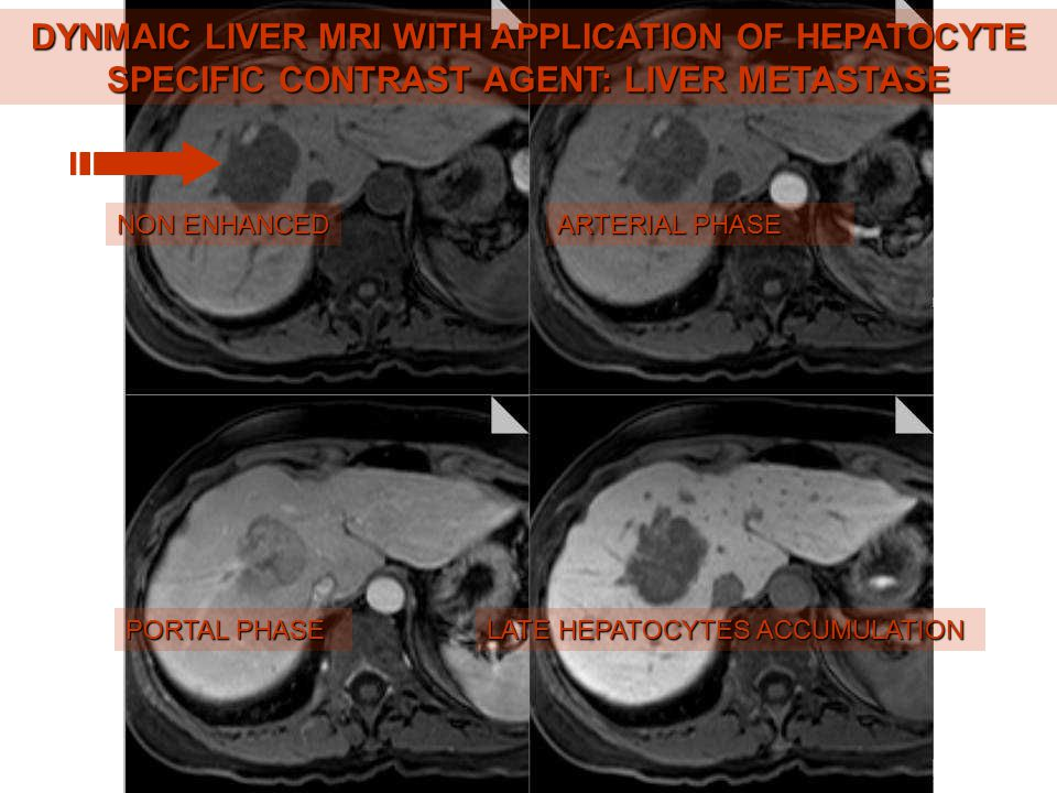 DYNMAIC LIVER MRI WITH APPLICATION OF HEPATOCYTE SPECIFIC CONTRAST AGENT: LIVER METASTASE