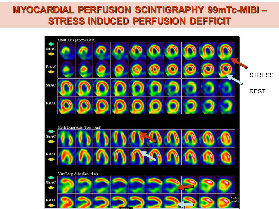 MYOCARDIAL PERFUSION SCINTIGRAPHY 99mTc-MIBI – STRESS INDUCED PERFUSION DEFFICIT