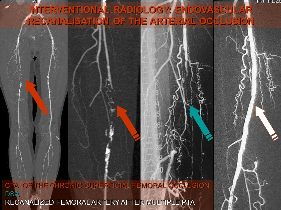 INTERVENTIONAL RADIOLOGY: ENDOVASCULAR RECANALISATION OF THE ARTERIAL OCCLUSION