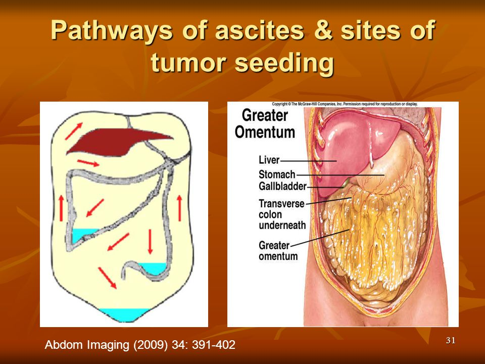 Pathways of ascites & sites of tumor seeding
