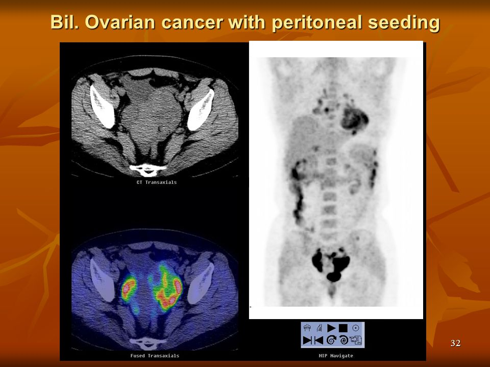 Bil. Ovarian cancer with peritoneal seeding