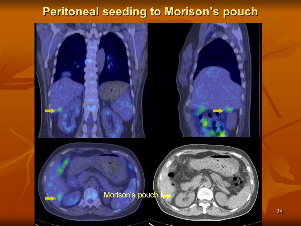 Peritoneal seeding to Morison's pouch