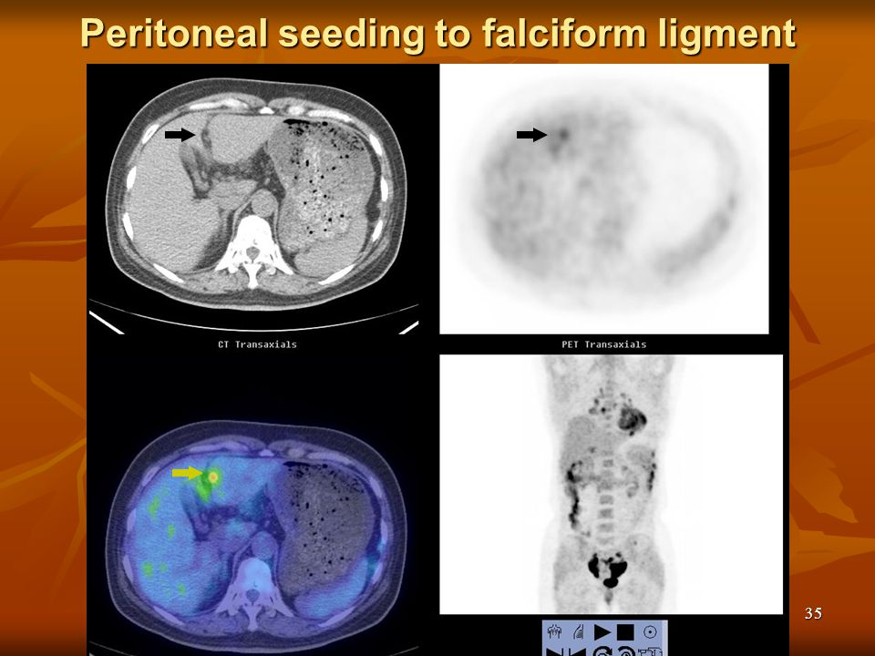 Peritoneal seeding to falciform ligment