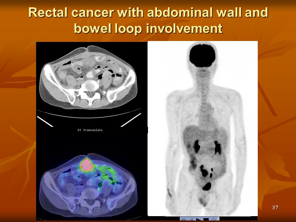 Rectal cancer with abdominal wall and bowel loop involvement