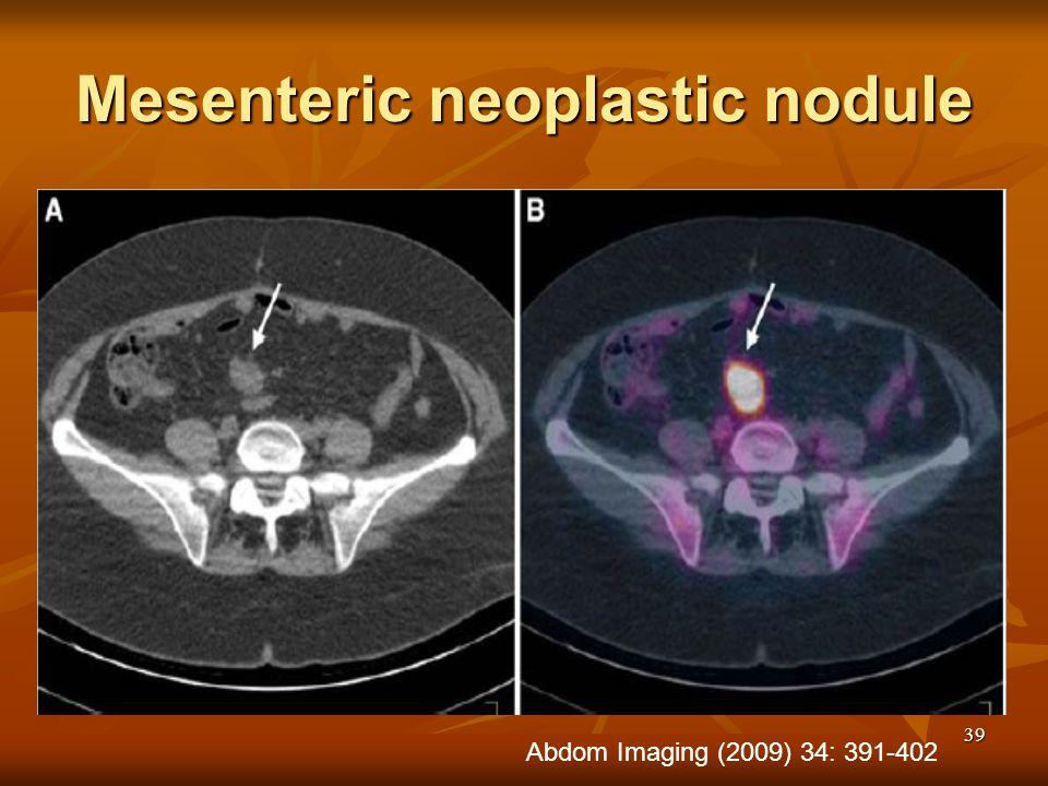Mesenteric neoplastic nodule