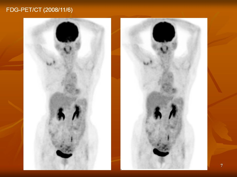 FDG-PET/CT (2008/11/6)