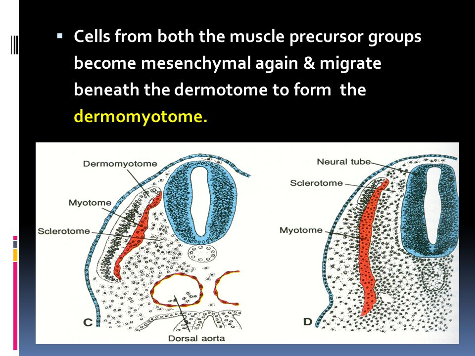 Cells from both the muscle precursor groups become mesenchymal again & migrate beneath the dermotome to form the dermomyotome.