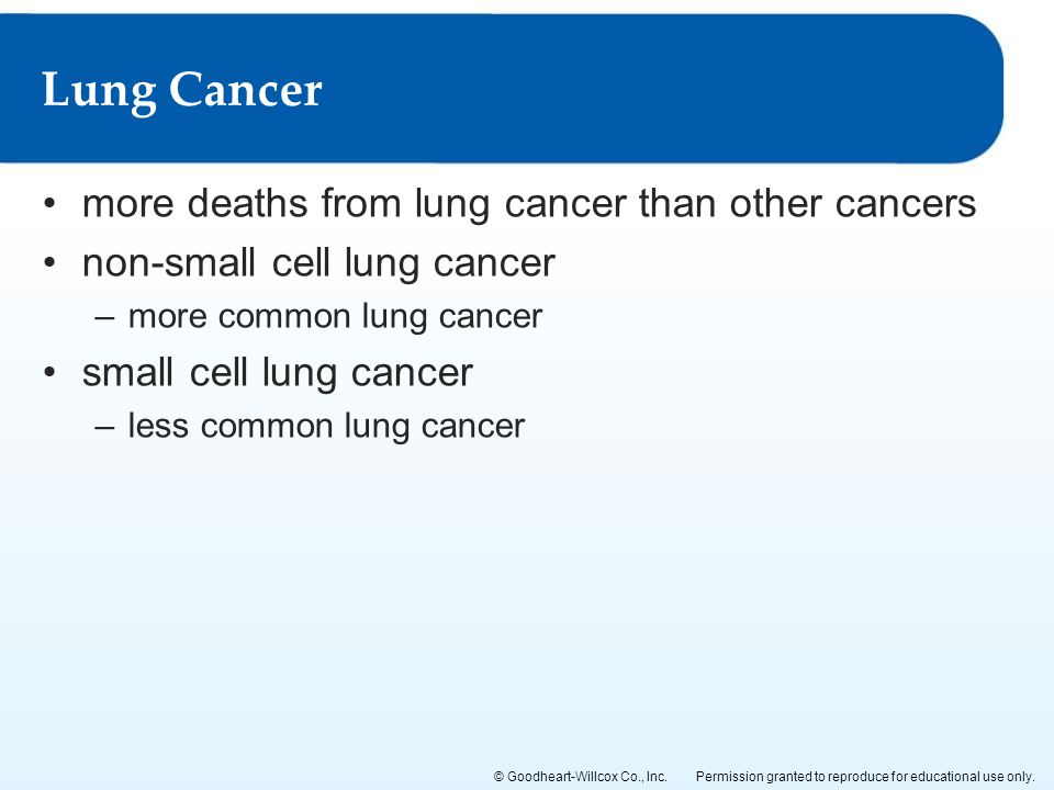 Lung Cancer more deaths from lung cancer than other cancers
