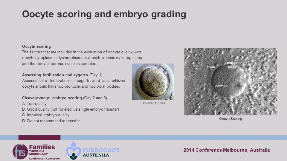 Oocyte scoring and embryo grading