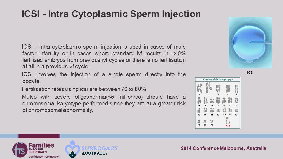 ICSI - Intra Cytoplasmic Sperm Injection