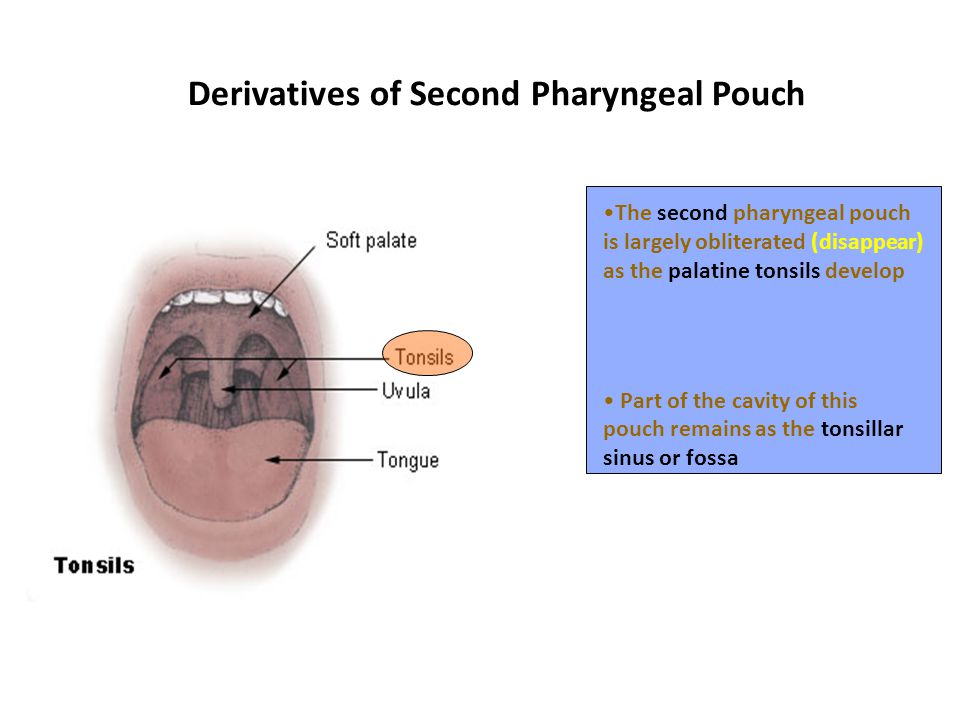 Derivatives of Second Pharyngeal Pouch