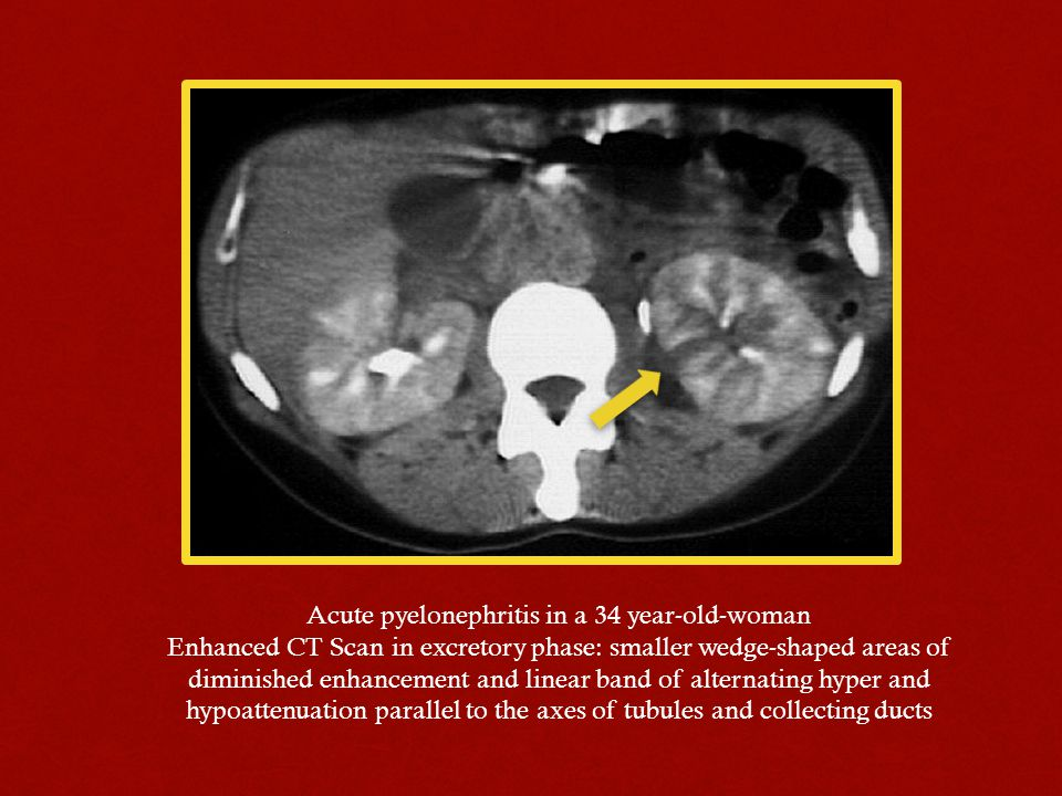 Acute pyelonephritis in a 34 year-old-woman