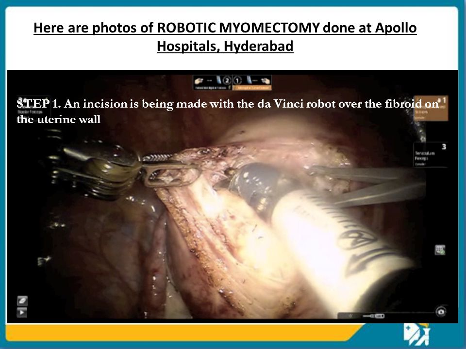 Here are photos of ROBOTIC MYOMECTOMY done at Apollo Hospitals, Hyderabad