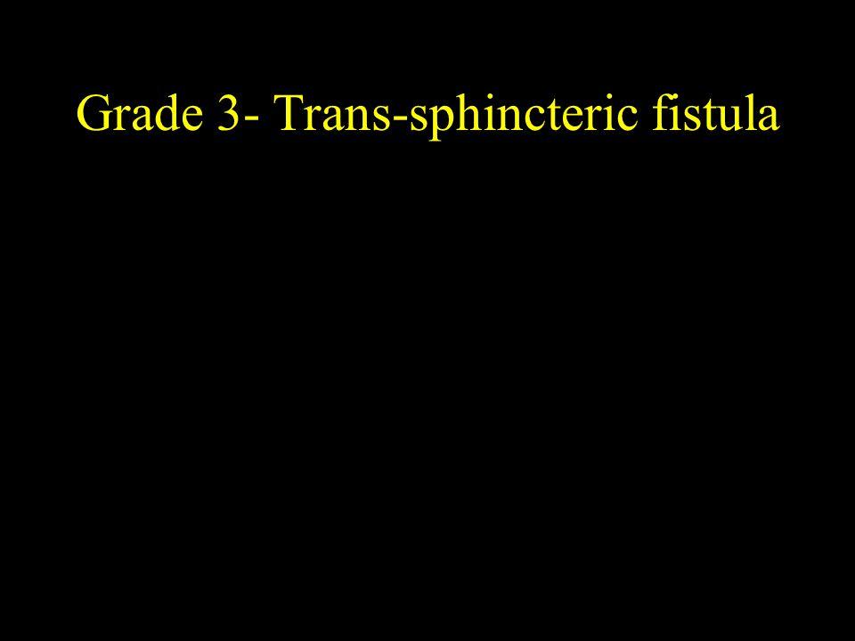 Grade 3- Trans-sphincteric fistula