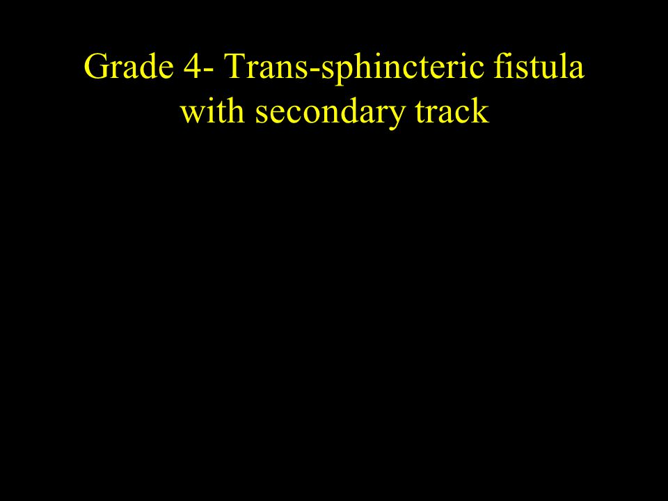 Grade 4- Trans-sphincteric fistula with secondary track