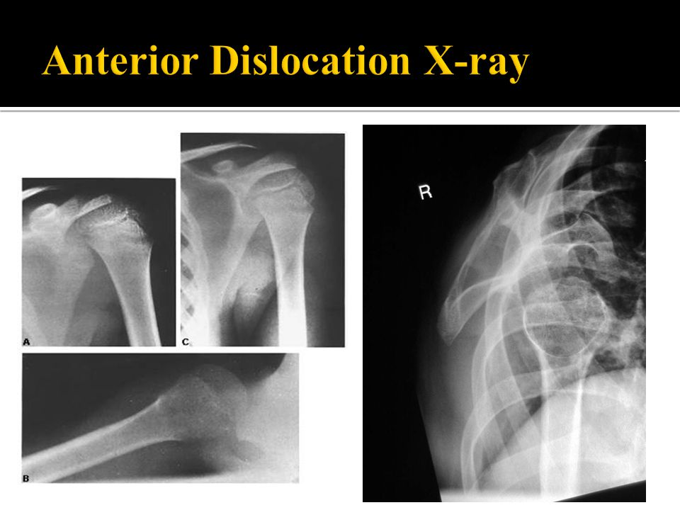 Anterior Dislocation X-ray