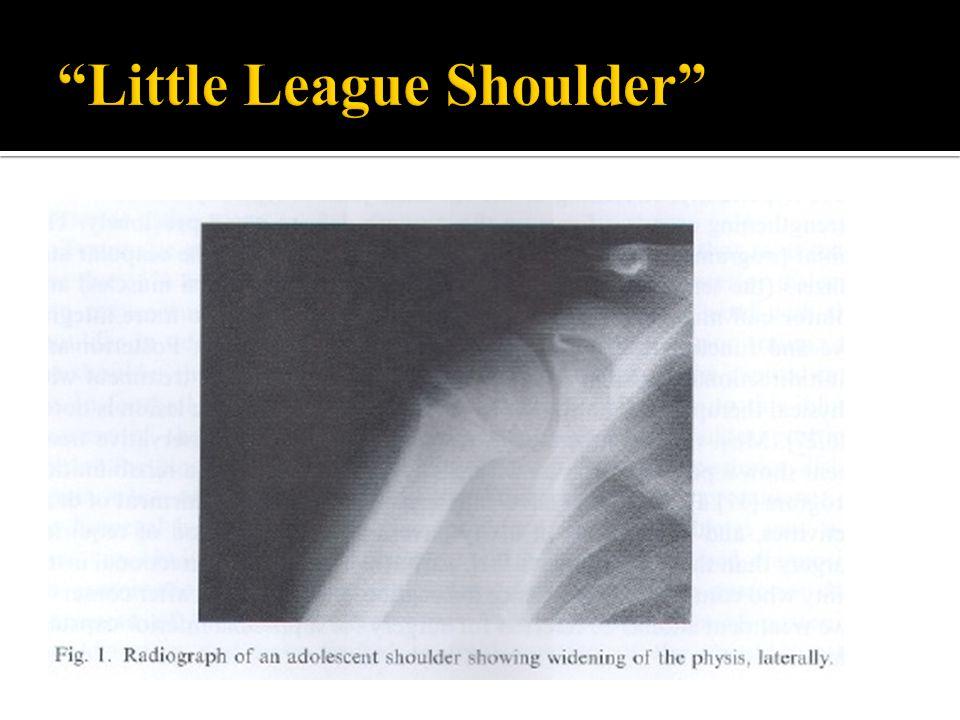 Little League Shoulder