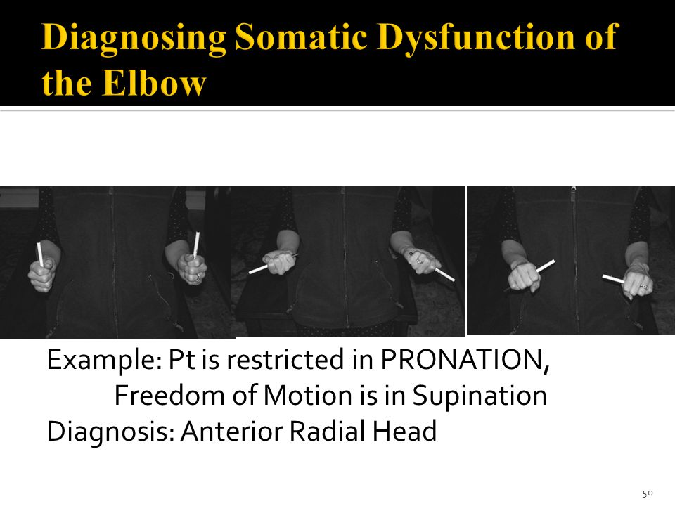 Diagnosing Somatic Dysfunction of the Elbow