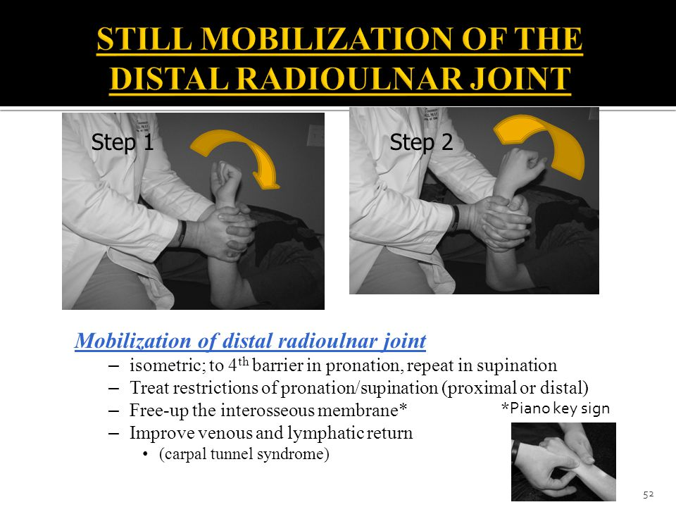 STILL MOBILIZATION OF THE DISTAL RADIOULNAR JOINT