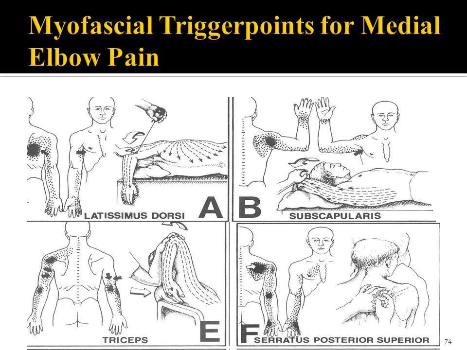 Myofascial Triggerpoints for Medial Elbow Pain