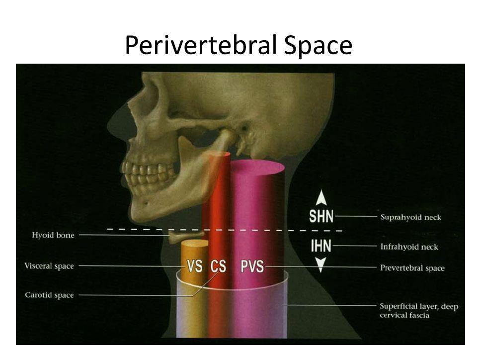 Perivertebral Space